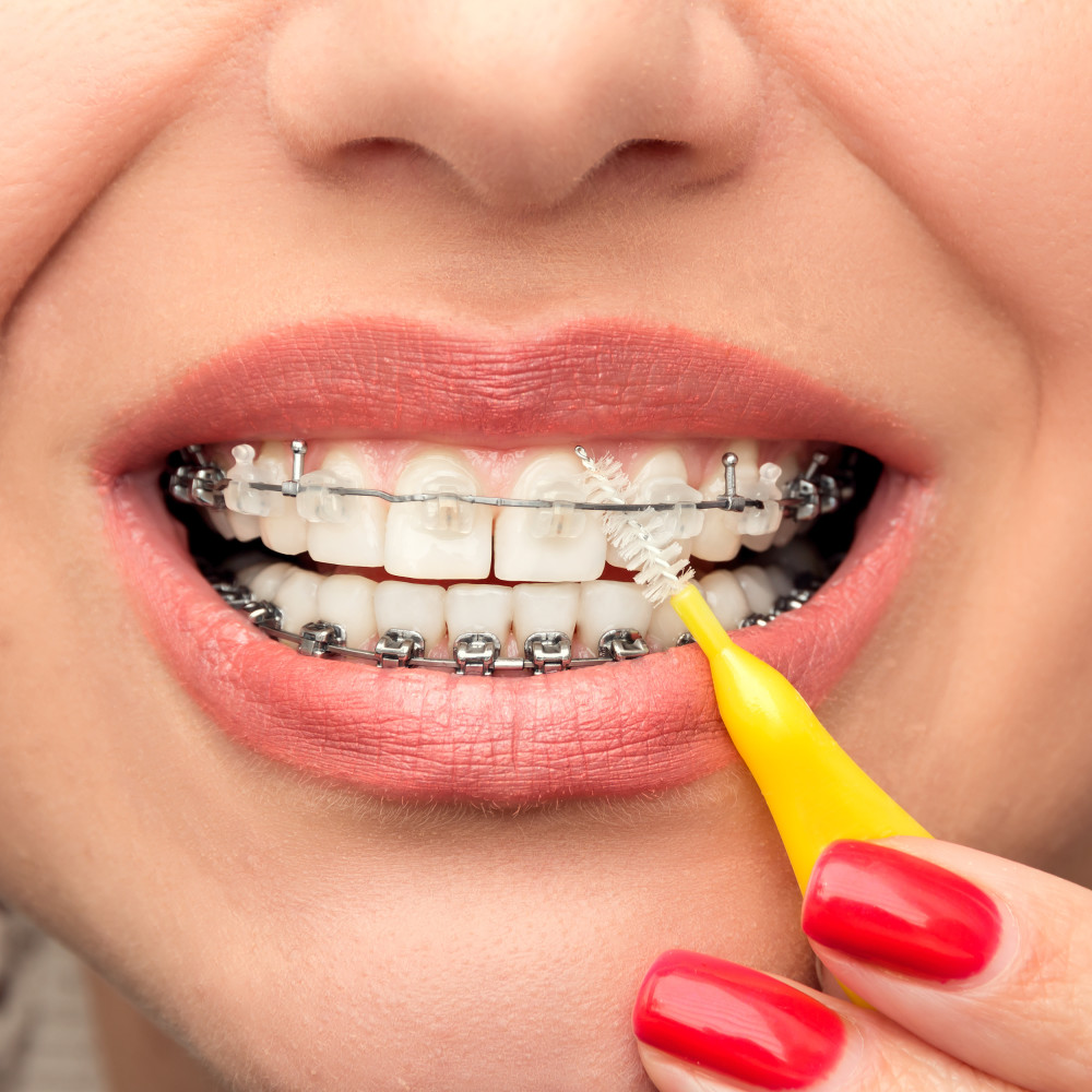 Dental Braces Hygiene. Orthodontic Treatment. Front view.
