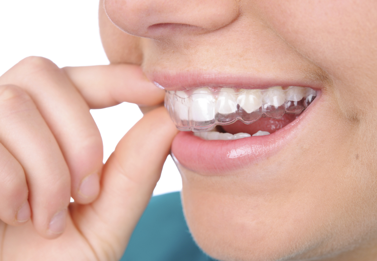 How to invisalign wear braces